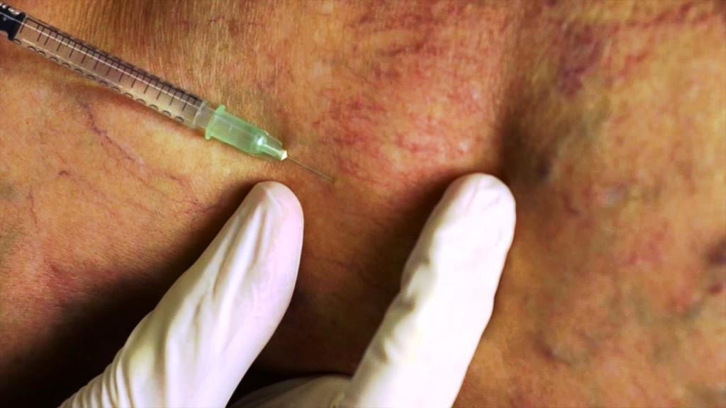 инъекция склерозанта